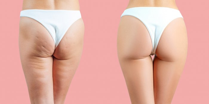 Female buttocks before and after anti cellulite treatment on pink pastel background