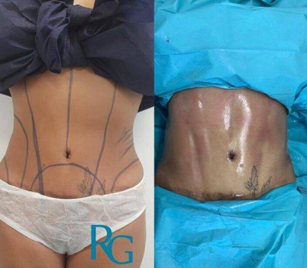 marcacion abdominal murcia